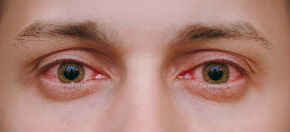 Why Does Marijuana Make Your Eyes Red